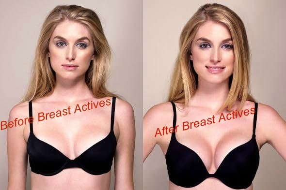 Janet - before and after Breast Actives treatment