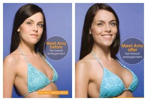 Amy - before and after Breast Actives treatment