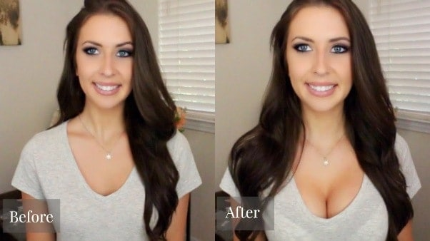 images of before-after Breast Actives therapy