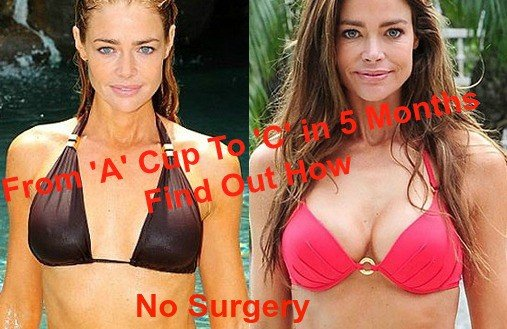 Denise-Richards-before and after breast actives