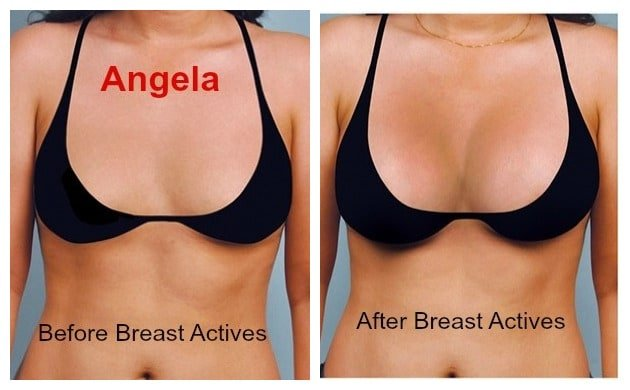 Angela - Breast Actives: before and after therapy