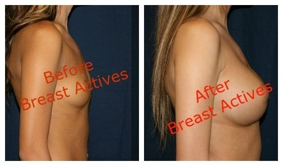 Breast Actives Before and After photos of Marilyn