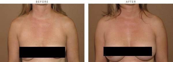 she opted for Breast Actives enhancement