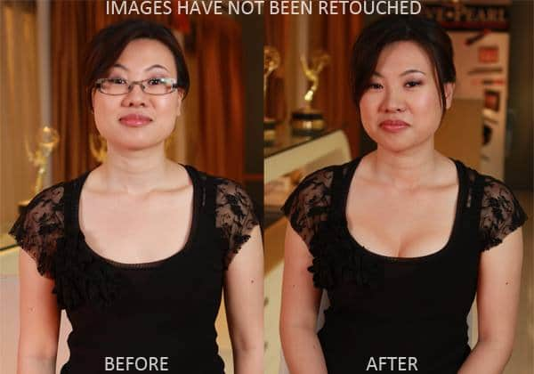 before and after natural breast enhancement
