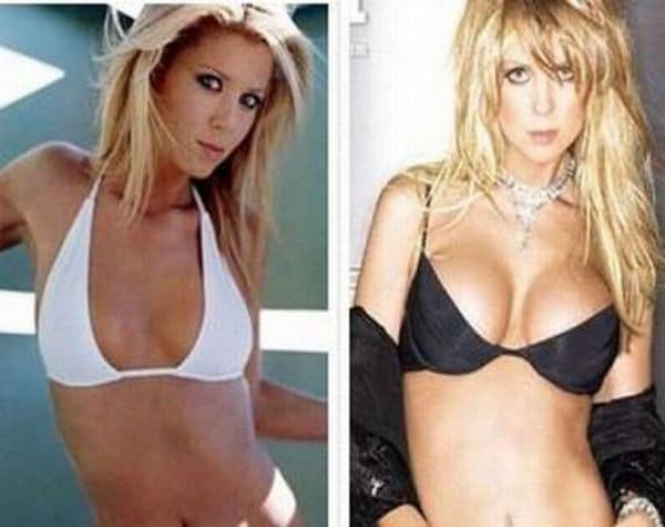 before and after breast-actives