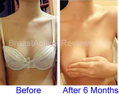 before and after six months of breast actives therapy