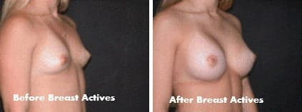 Janice - before & after Breast Actives