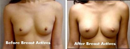 Loreta - before and after Breast Actives